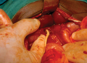 An adult ascaris worm emerging through a surgical incision